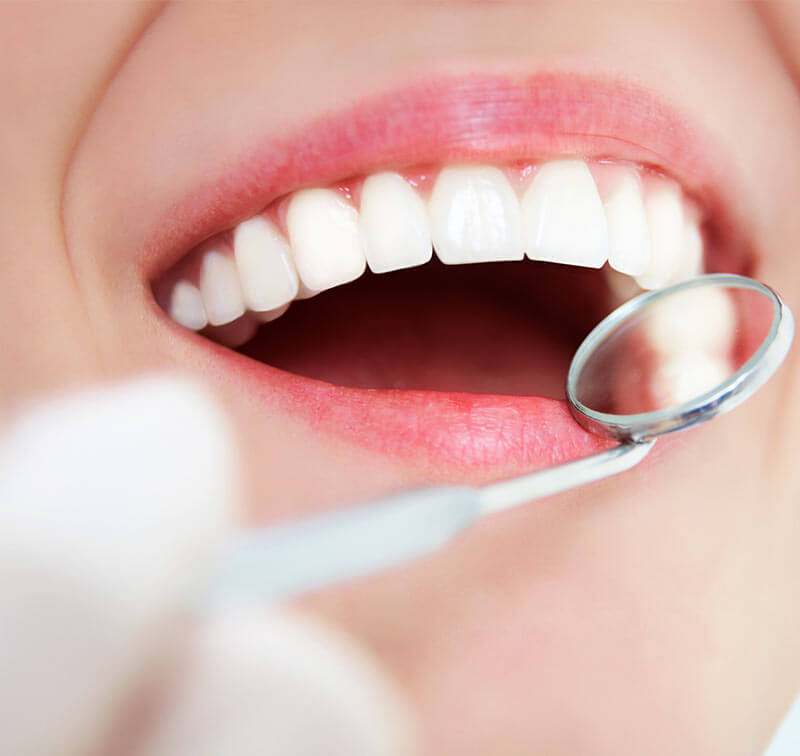 Teeth Cleaning Clinic Phoenix